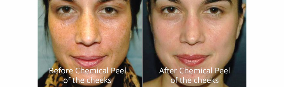 how to treat acne during steroid cycle