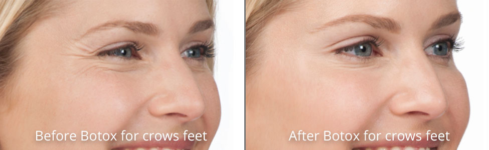 Botox & Dermal Fillers at Pinnacle Anti Aging   Western
