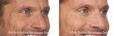 pinnacle-anti-aging-before-after-botox-cashiers-western-north-carolina-2