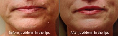 pinnacle-anti-aging-before-after-juvederm-cashiers-western-north-carolina-3