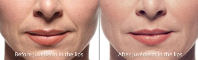 pinnacle-anti-aging-before-after-juvederm-cashiers-western-north-carolina