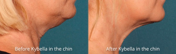 pinnacle-anti-aging-before-after-kybella-cahiers-western-north-carolina-3