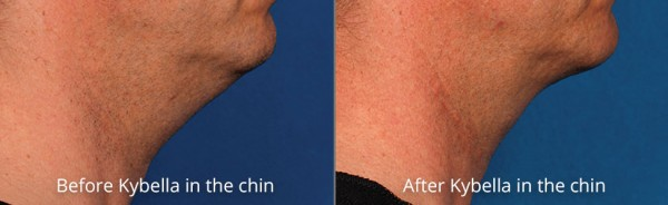 pinnacle-anti-aging-before-after-kybella-cashiers-western-north-carolina