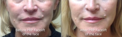pinnacle-anti-aging-before-after-prp-facelift-cashiers-north-carolina-2