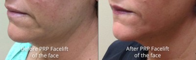 pinnacle-anti-aging-before-after-prp-facelift-cashiers-north-carolina