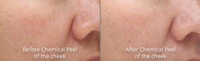 pinnacle-anti-aging-chemical-peel-dermaplaning-before-after-cashiers-western-north-carolina-3