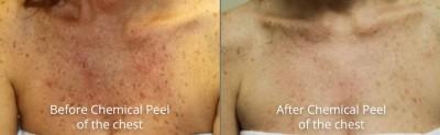 pinnacle-anti-aging-chemical-peel-dermaplaning-before-after-cashiers-western-north-carolina-4