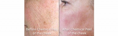 pinnacle-anti-aging-chemical-peel-dermaplaning-before-after-cashiers-western-north-carolina